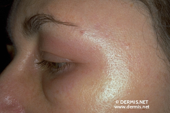 localisation: around the eyes diagnosis: Quincke's Oedema