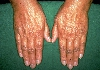 localisation: back of the hands, diagnosis: Addison's Disease