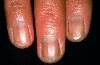 localisation: Fingernagelfalz, Nagelplatte (Fingerrnagel), Diagnose: Morbus Addison