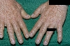 localisation: hands, diagnosis: Acromegaly