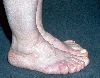 localisation: feet, diagnosis: Acromegaly