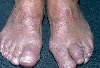 localisation: distal interphalangeal joint of the toe, diagnosis: Gouty Tophus