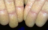 Lokalisation: Finger, Diagnose: Darier'sche Krankheit