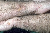 localisation: lower arms, diagnosis: Dermatitis Herpetiformis Duhring