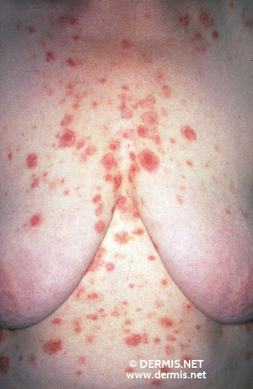 localisation: chest diagnosis: Pemphigus Seborrhoicus