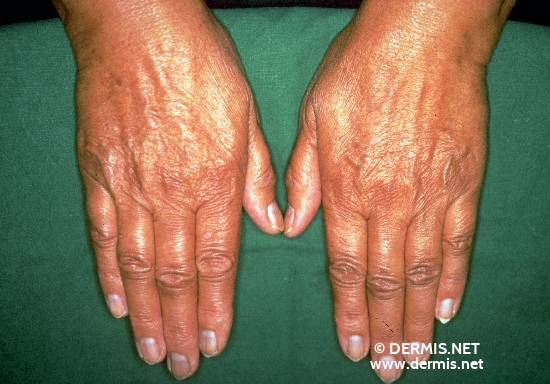 localisation: back of the hands diagnosis: Addison's Disease