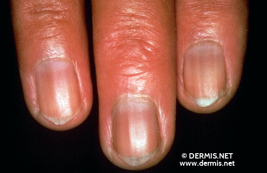 localisation: proximal nail fold of the finger nail plate of the finger diagnosis: Addison's Disease