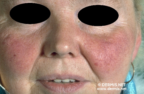 localisation: cheek diagnosis: Rubeosis Diabeticorum