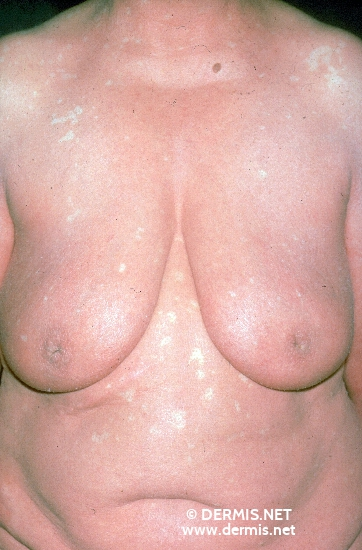localisation: chest diagnosis: Pityriasis Rubra Pilaris Devergie