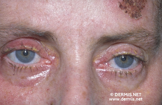 localisation: around the eyes diagnosis: Pemphigus Vulgaris