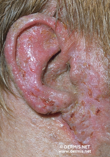 localisation: ear diagnosis: Dyskeratosis Follicularis