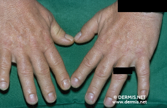 localisation: hands diagnosis: Acromegaly