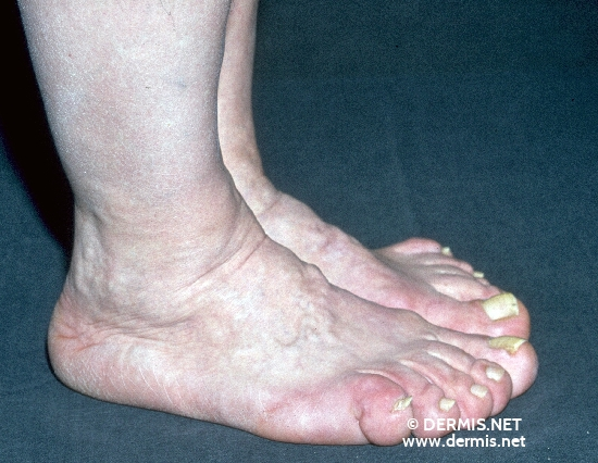 localisation: feet diagnosis: Acromegaly