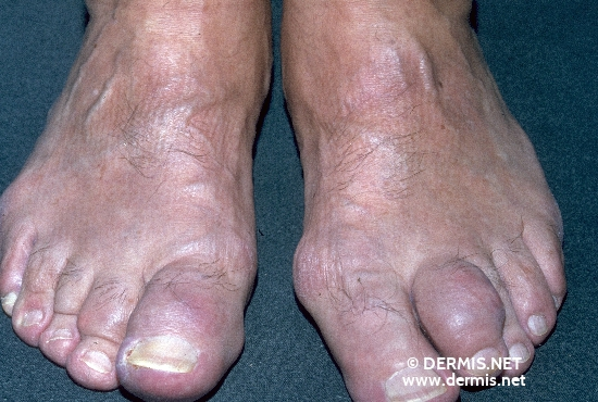 localisation: distal interphalangeal joint of the toe diagnosis: Gouty Tophus