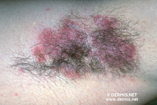 localisation: axilla diagnosis: Benign Familial Chronic Pemphigus