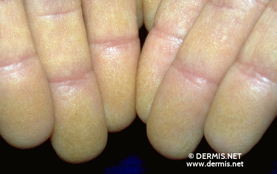 localisation: finger diagnosis: Dyskeratosis Follicularis