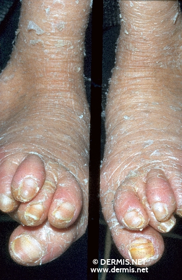 localisation: feet diagnosis: Sjögren-Larsson Syndrome