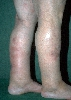 localisation: lower leg, diagnosis: Vasculitis Nodularis Montgomery