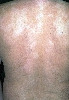 diagnostic: Tinea versicolor