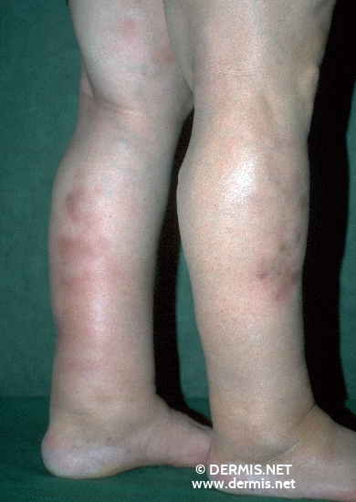 localisation: lower leg diagnosis: Vasculitis Nodularis Montgomery