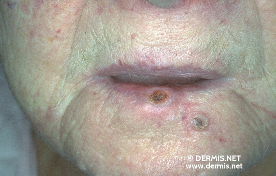 diagnosis: Squamous Cell Carcinoma