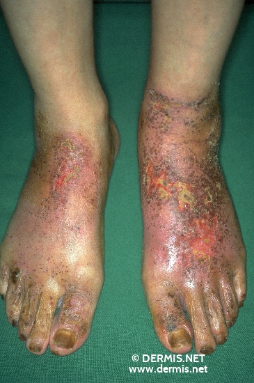localisation: back of the feet diagnosis: Acute Irritant Contact Dermatitis