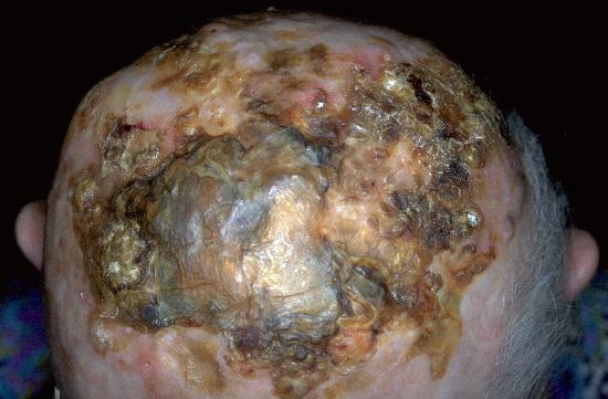 Le psoriasis sur la personne à spb