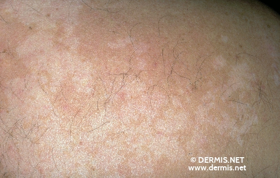localisation: back diagnosis: Pityriasis Versicolor