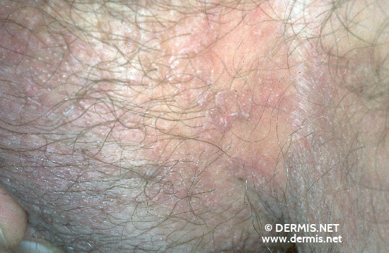 diagnosis: Porokeratosis of Mibelli