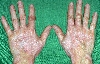 localisation: back of the hands, diagnosis: Vitiligo