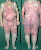 localisation: total body view, diagnosis: Mycosis Fungoides