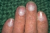 localisation: corps de l'ongle, diagnostic: Half-and-Half Nails