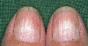 localisation: placa ungueal dos dedos da mão, diagnóstico: Half-and-Half Nails