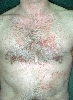 localisation: chest, diagnosis: Dyskeratosis Follicularis