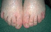 diagnosis: Onychomycosis