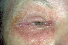 localisation: around the eyes, diagnosis: Allergic Contact Dermatitis, Acute & Chronic