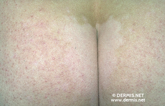 Diagnose: Keratosis pilaris Vitiligo