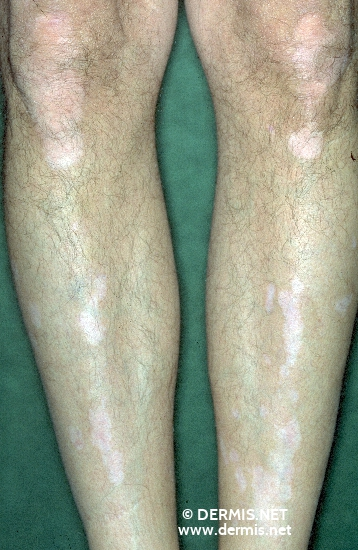 localisation: knee lower leg diagnosis: Vitiligo