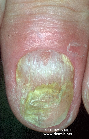 diagnosis: Psoriasis Vulgaris, Nail Changes