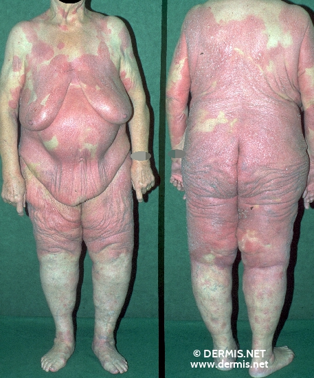 localisation: total body view diagnosis: Mycosis Fungoides