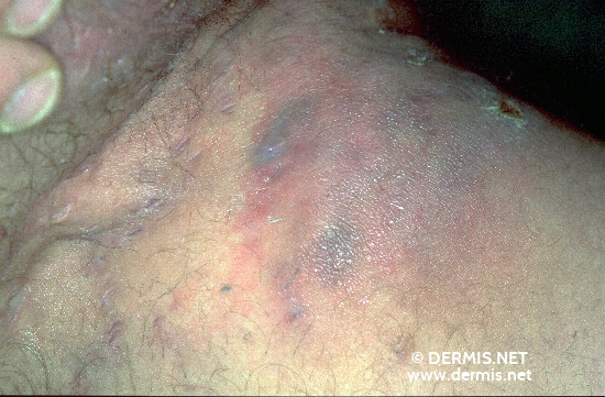 localisation: inguinal region upper leg diagnosis: Acne Inversa Hidradenitis Suppurativa