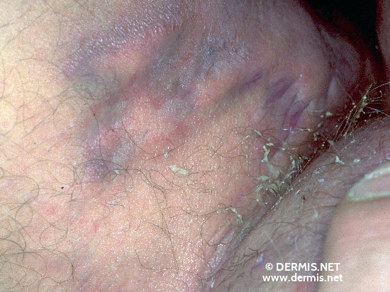 localisation: upper leg diagnosis: Acne Inversa Hidradenitis Suppurativa