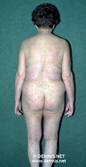 localisation: tronc diagnostic: Hypereosinophilic Dermatitis
