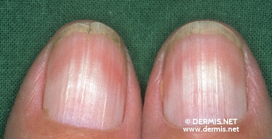 localisation: Nagelplatte (Fingerrnagel) Diagnose: Half and Half-nails