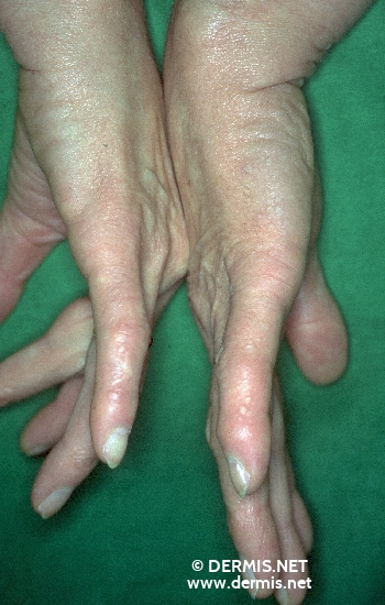 diagnosis: Focal Acral Hyperkeratosis
