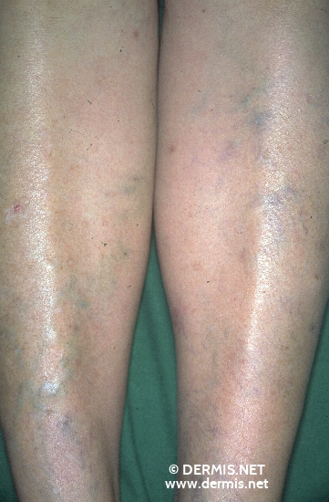 localisation: lower leg diagnosis: Chronic Venous Insufficiency, Grade II Disseminated Superficial Actinic Porokeratosis