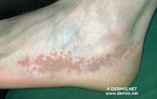 localisation: feet diagnosis: Dyskeratosis Follicularis