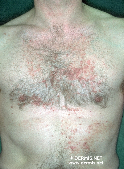 localisation: chest diagnosis: Dyskeratosis Follicularis
