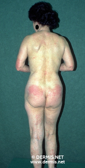localisation: back buttocks elbow diagnosis: Allergic Contact Dermatitis, Acute & Chronic