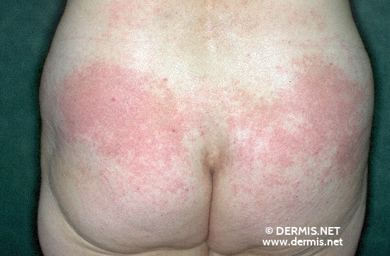 Contact+dermatitis+pictures